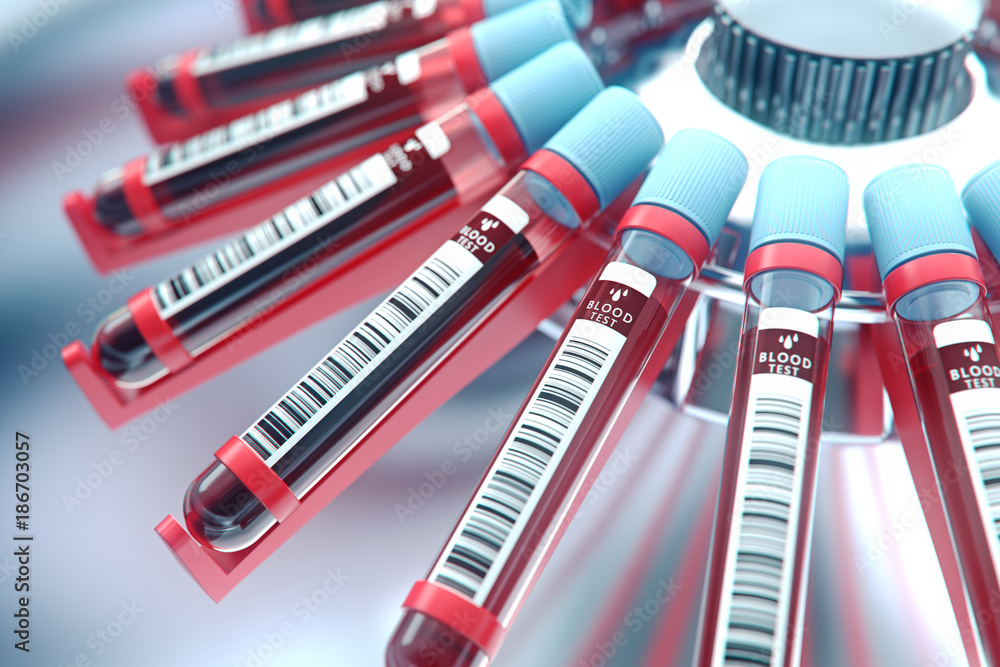 AI Blood Testing Technology Could Change How We Detect Lung Cancer
